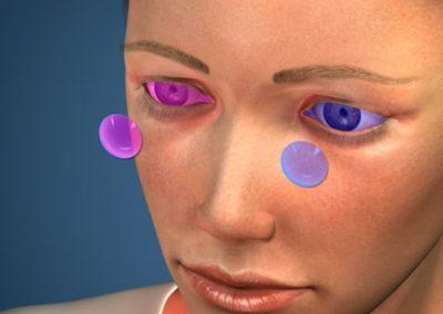 Lentes de Contacto para Presbicia