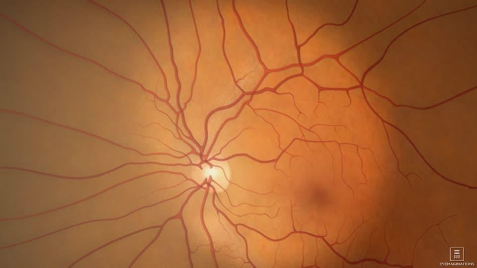 Introducción Retina