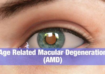 Degeneración Macular: Descripción