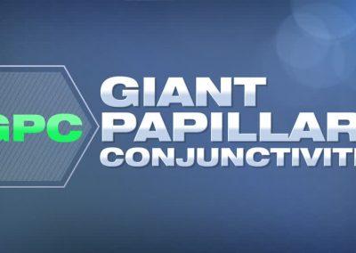 Conjuntivitis Papilar Gigante (GPC)