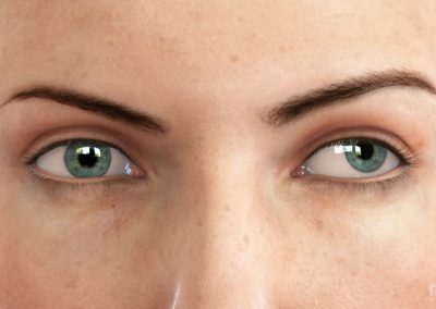 Estado: Ojos Anterior (ancho) – Estrabismo