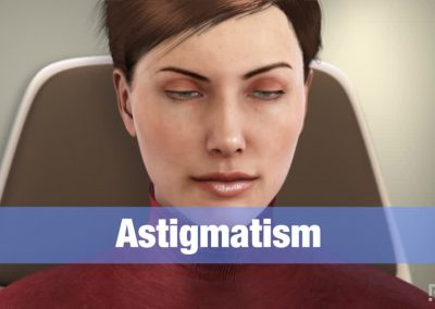 Astigmatismo: Tratamiento