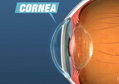 Enfermedad de la superficie ocular: