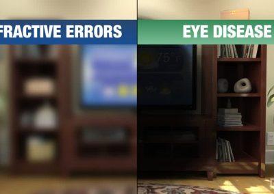 Errores refractivos y enfermedades oculares