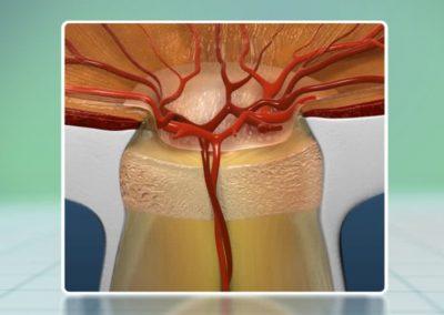 Glaucoma: Conciencia