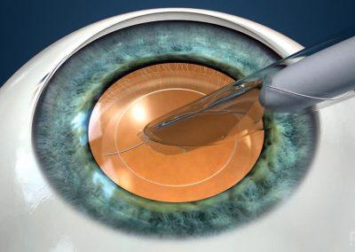 Cirugía de Cataratas: Post Operativa – Recuperación Visual