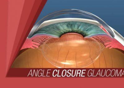 TIPOS DE GLAUCOMA ( ANGULO CERRADO)